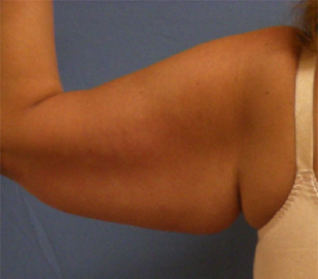 Before Arm Lift