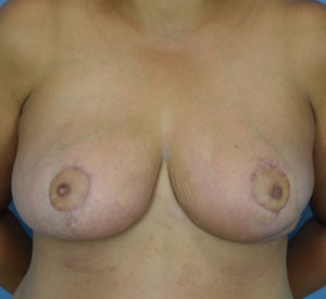 After Breast Augmentation Front view
