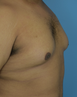 Ambay Plastic Surgery - Male Breast Reduction