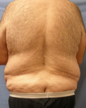 Before Body Lift male Back view