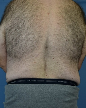 After Body Lift male Back view