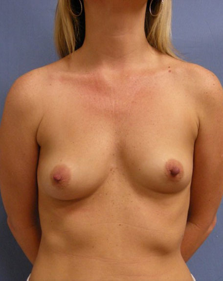 Before Breast Augmentation Font View