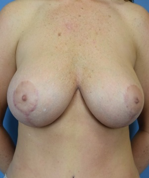 After Breast Augmentation Font View