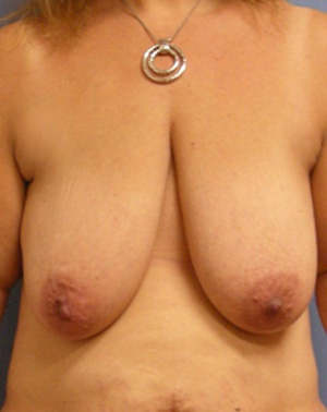 Before Breast Lift front view