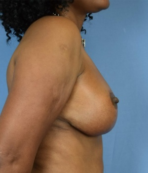 After Breast Lift side view