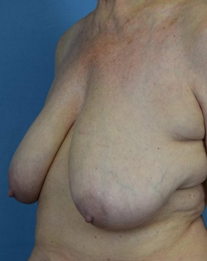 Before Breast Lift side view