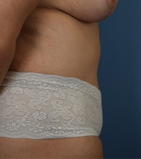 After Liposuction Side view