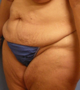 Before Liposuction Side view