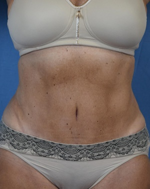After Liposuction Front view