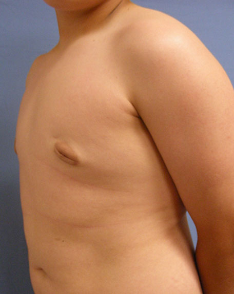 After Male Breast Reduction Side View