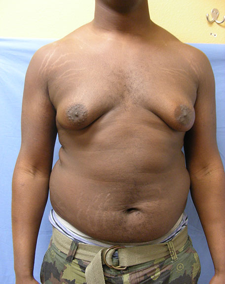 Before Male Breast Reduction Front View