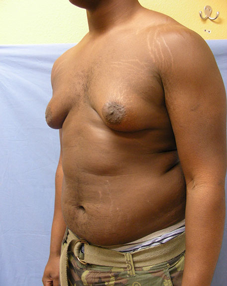 Before Male Breast Reduction Side View