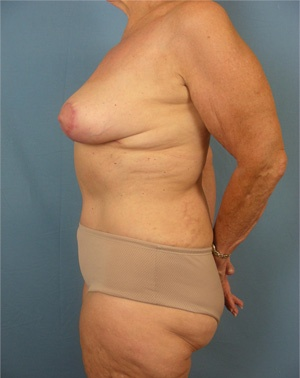 Ambay Plastic Surgery - Mommy Makeover
