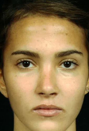 After Rhinoplasty Front view