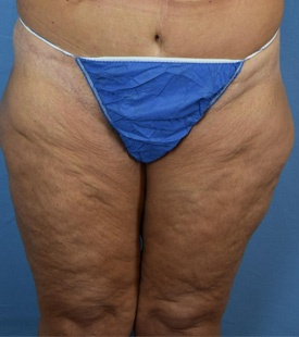 Before Thigh Lift Front view