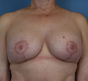 After - Breast Lift - Front View