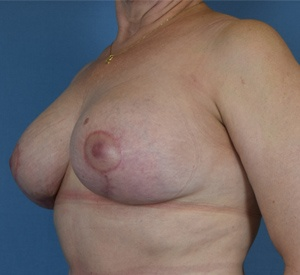 After - Breast Lift - Left Angle View