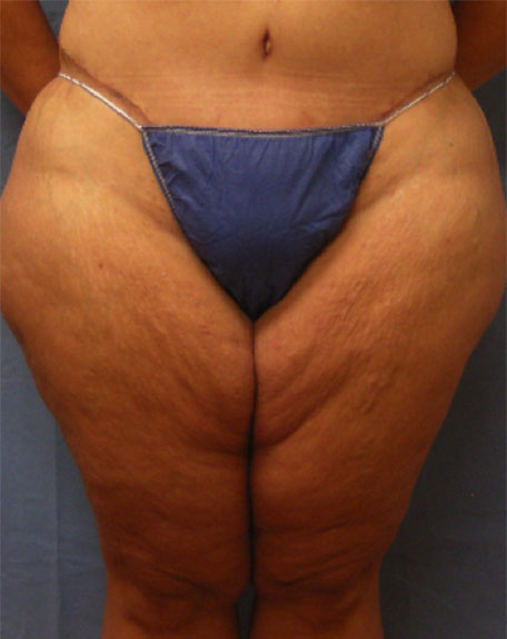 Before Liposuction Front view