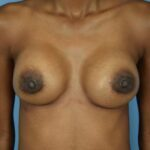 Breast Augmentation - Front Photo